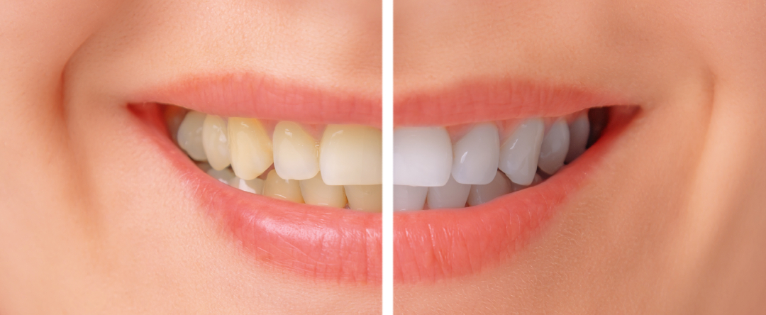 A before and after image of Fluoride Treatment in Surprise AZ