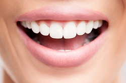 Benefits of Gum Graft Surgery