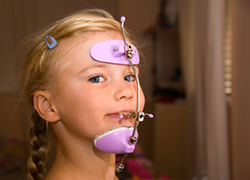 Young girl with orthodontic headgear from Surprise Smiles