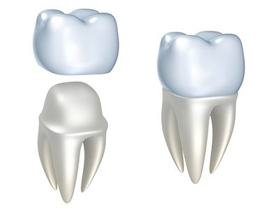 Most Common Needs for Dental Crowns