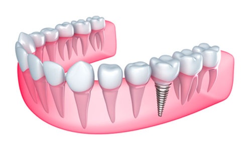 What Can Be Done to Reduce the Chances of Implant Rejection?