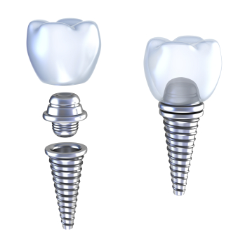 Dental Implants at Surprise Smiles  in Surprise, AZ