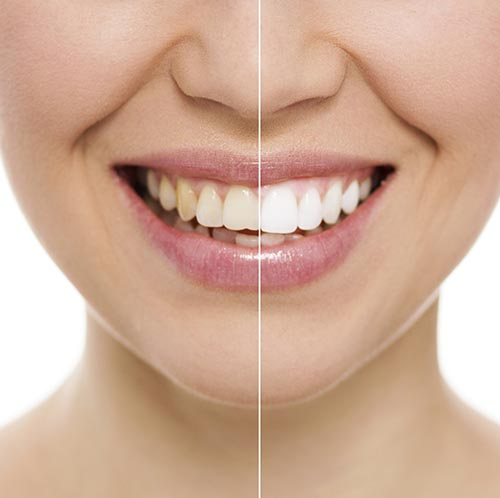 Before and After Teeth Whitening treatment at Surprise Smiles