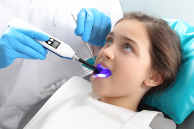 Fluoride Treatment in Surprise AZ