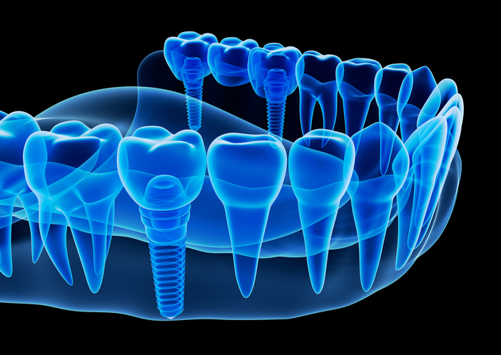 Picture of dental implants at Surprise Smiles in Surprise, AZ.